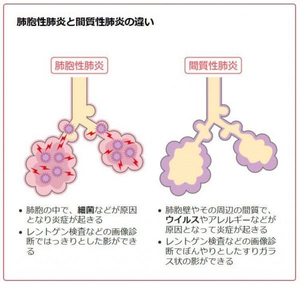 肺胞性肺炎(≒一般の肺炎) と 間質性肺炎(≒新型コロナウイルスによる肺炎) サムネイル画像
