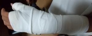手 骨折 包帯