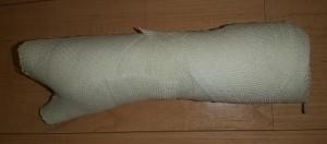 手 骨折 包帯 シーネ
