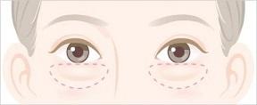 eye_kuma_fukurami.jpg