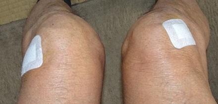 20210318膝にヒアルロンサンを注射 2