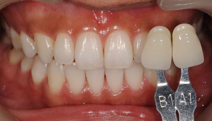 $山崎歯科クリニックのブログ