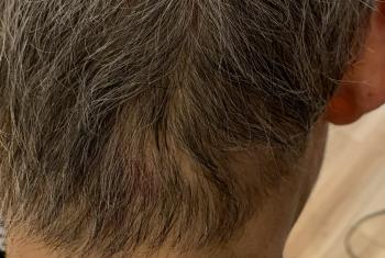 円形脱毛症4