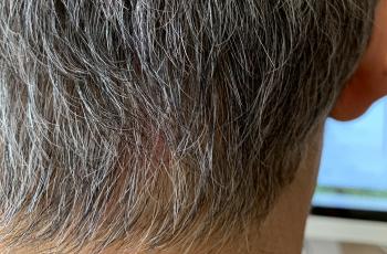 円形脱毛症6